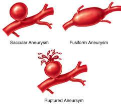 The two types of stroke are aneurism (hemorrhagic) and what we refer to simply as stroke (ischemic), which is caused by a blood clot. Have you known anyone who has died from an aneurism?