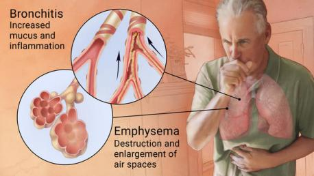Damage to the lungs caused by COPD cannot be repaired. If the disease is found early, though, it might be possible to slow it down. If you have symptoms like shortness of breath, an ongoing cough, or chest tightness, your doctor can give you a simple test for COPD. Have you ever been tested for COPD?