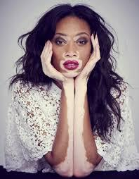Chantelle Brown-Young, also known as Winnie Harlow, is not hard to spot. She's easily one of the most fascinating women to come out of