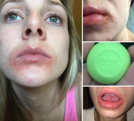 A woman named Rachael Cronin has filed a class action lawsuit against the company, which sells its product in colorful, egg-shaped pods. Kim, Britney, Hilary Duff and others are brand ambassadors. The suit claims the product has produced a panoply of bad reactions, including severe rashes, bleeding, blistering, cracking and loss of pigmentation. Cronin claims her experience was awful ... she says within hours of applying the balm, her lips felt like sandpaper, so she applied it again. She claims her lips started cracking, flaking and bleeding, creating blisters and rashes which lasted 10 days. </span></p><p> Did you have a negative reaction from using them?