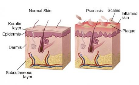 Psoriasis begins in the immune system, mainly with a type of white blood cell called a T cell. Psoriasis can be caused by infections, stress, changes in the weather that dry the skin, and certain medicines. Were you aware of these facts?