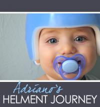 Did your baby need a helmet?