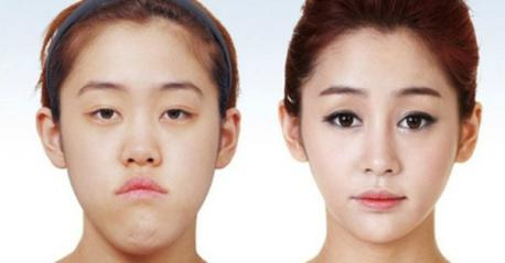 Why haven't you had cosmetic surgery?