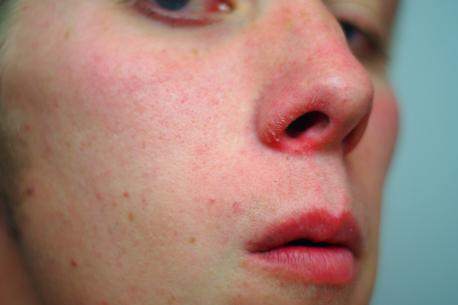 Have you ever had sores on your nose from a cold? It was the worse case I've ever had, (worse than the picture above) and wonder if there's something I could put on it to help with the pain list any suggestions in the comments.
